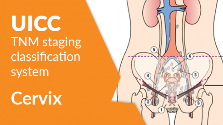 The UICC TNM Classification: Cervix