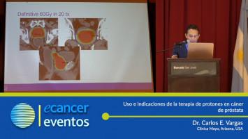 Uso e indicaciones de la terapia de protones en cáncer de próstata. ( Dr. Carlos Vargas - Clínica Mayor Arizona, USA )