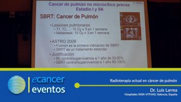 Radioterapia actual en cáncer de pulmón. ( Dr. Luis Larrea - Hospitales NISA-VITHA, Valencia, España. )