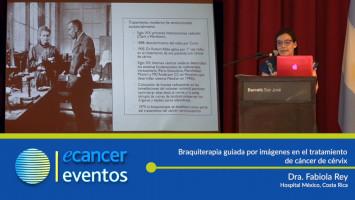 Braquiterapia guiada por imágenes en el tratamiento de cáncer de cérvix. ( Dra. Fabiola Rey - Hospital México, Costa Rica. )