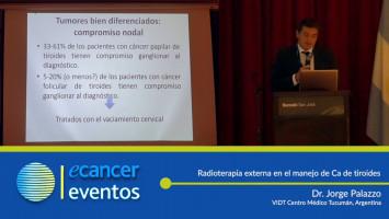 Radioterapia externa en el manejo de Ca de tiroides. ( Dr. Jorge Palazzo - VIDT Centro Médico Tucumán, Argentina )