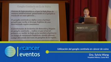 Utilización del ganglio centinela en cáncer de vulva. ( Dra. Sylvia Wang - Hospital México, Costa Rica )