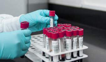 EHA 2021: ALPINE study reveals superior safety and efficacy of zanubrutinib compared with ibrutinib