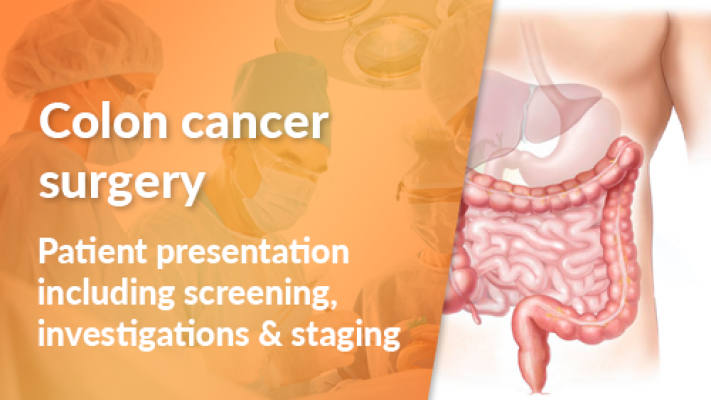 Patient Presentation Including Screening, Investigations and Staging