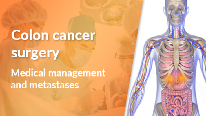 Medical Management and Metastases