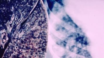 AACR 2021: Cancer aneuploidy may predict responses to immunotherapy in patients with non-small cell lung cancer