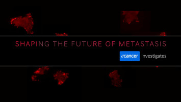 Shaping the future of metastasis - ecancer investigates ( Monique Biryiana - ecancer Medical Reporter, Dr Chris Bakal - Dynamical Cell Systems Team Leader, Patricia Pascual Vargas - PhD Student )