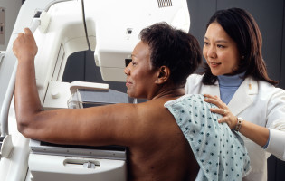New mammogram measures of breast cancer risk could revolutionise screening