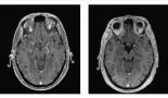 970-successful-osimertinib-rechallenge-following-drug-induced-pneumonitis-after-previous-anti-pdl1-exposure