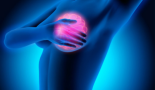 ASCO 2020: Trastuzumab achieves slight reduction in recurrence for women with HER2-positive DCIS