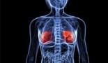 El colesterol alto alimenta el cáncer al fomentar la resistencia a una forma de muerte celular