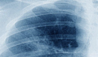 Experts issue guide on lung cancer screening, management during COVID-19