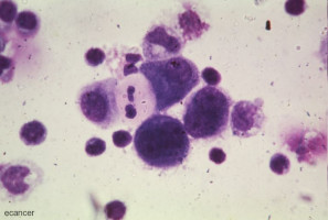 Cancer mutation in dual role