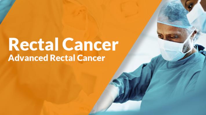 Advanced rectal cancer