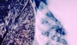 ASCO 2020: El ensayo confirma el beneficio de la supervivencia duradera y a largo plazo del nivolumab más ipilimumab sobre la quimioterapia en pacientes con cáncer de pulmón no microcítico metastásico de primera línea.