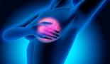 ASCO 2020: La cirugía y la radiación no prolongan la supervivencia en el cáncer de mama metastásico recién diagnosticado