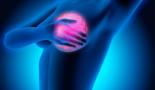 ASCO 2020: El trastuzumab logra una ligera reducción de la recurrencia en mujeres con DCIS HER2-positivo