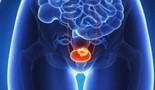 ASCO 2021: Choice of first-line platinum regimen does not significantly impact efficacy of second-line immunotherapy in advanced bladder cancer