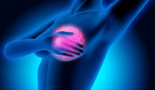 ASCO 2021: Breast cancer patients embrace integrative health during treatment