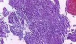 1072-undifferentiated-carcinoma-with-osteoclastic-giant-cells-of-the-pancreas-diagnosed-by-endoscopic-ultrasound-guided-biopsy