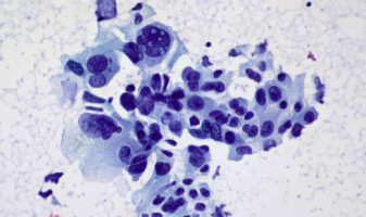 Proteogenomics offers insight to treating head and neck squamous cell carcinoma