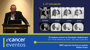 Aplicación física SBRT en cáncer de próstata ( MSc. William Parker -  McGill University, Canadá )