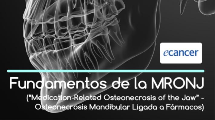 "Fundamentos de la MRONJ (""Medication-Related Osteonecrosis of the Jaw"" -Osteonecrosis Mandibular Ligada a Fármacos)"