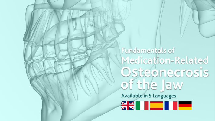 Fundamentals of Medication-Related Osteonecrosis of the Jaw - Available in English, French, Italian, German and Spanish