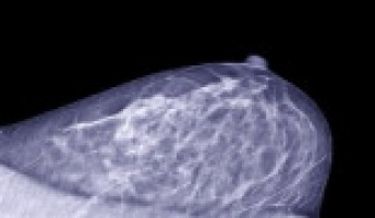 Inpatient mammograms can reduce disparities in breast cancer screening rates