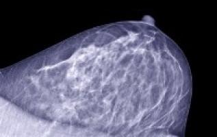 Las tomografías PET muestran que los biomarcadores podrían salvar a algunos pacientes de cáncer de mama de la quimioterapia
