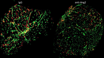 How to prevent the spread of tumour cells via the lymph vessels