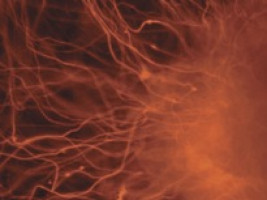Hydrogel rapidly reverts cancer cells back to cancer stem cells