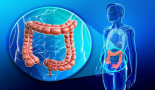 1196-net-survival-for-colorectal-cancer-in-cuiaba-and-varzea-grande-state-of-mato-grosso-brazil