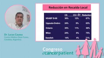 Generalidades del cáncer de mama ( Dr. Lucas Caussa Centro Médico Dean Funes, Córdoba, Argentina )