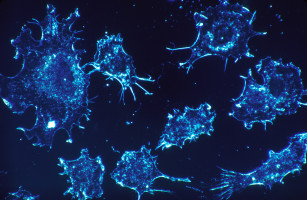 Quantum physics helps destroy cancer cells