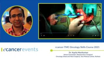 Submental Flap ( Dr. Kapila Manikantan - Senior Consultant, Department of Surgical Oncology (Head and Neck Surgery), Tata Medical Center, Kolkata )