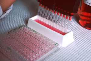 Ludwig cancer research study shows how novel drug screen can individualise cancer therapy