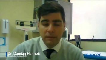 Tratamiento de inmunoterapia en el Cáncer de esófago avanzado ( Dr. Damian Hannois - Clínica Indisa, Santiago, Chile )