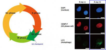 Finding the weak points in radiation-resistant pancreatic cancer cells