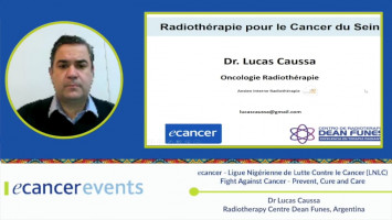 Forward Radiation Oncology in Breast cancer ( Dr Lucas Caussa - Dean Funes Medical Center, Argentina )