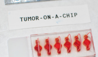 Personalised immunotherapy response studied in body-on-a-chip cancer models