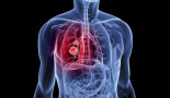 1279-survival-analysis-of-young-adults-from-a-brazilian-cohort-of-non-small-cell-lung-cancer-patients