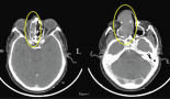 1287-exceptional-response-to-oral-metronomic-chemotherapy-in-a-rare-case-of-sinonasal-mucosal-melanoma