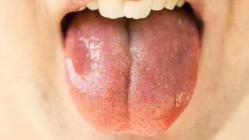 Saliva testing may allow early detection of human papillomavirus–driven head and neck cancers