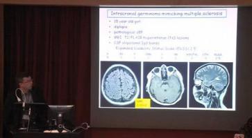 Intracranial germinoma mimicking multiple sclerosis ( Dr David Sumerauer - Charles University, Second Medical School, University Hospital Motol, Prague, Czech Republic )