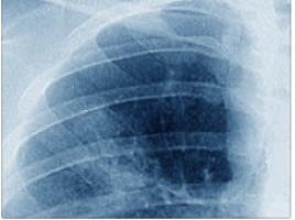 Una nueva terapia experimental reduce en un 90 % la metástasis de melanoma en el pulmón