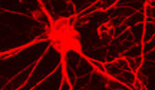 Cancer cells use nerve-cell tricks to spread from one organ to the next