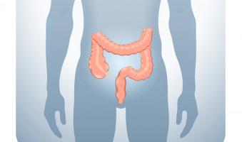 Leap forward' in risk management of rectal cancer