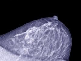 Nuevos resultados del estudio de cáncer de mama publicados en The Lancet