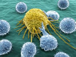 El cáncer de laringe tiene una tasa de curación superior al 95%